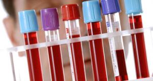 Відкрили дві нові групи крові
