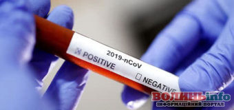 На Рівненщину надійшли німецькі тести для виявлення коронавірусу