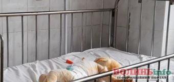 Пустощі з вогнем: на Рівненщині 8 хлопчик обгорів до кісток