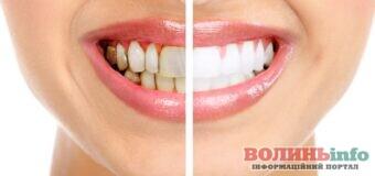 Все, что нужно знать о зубном налете