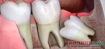 Чи обов'язково видаляти зуби мудрості?